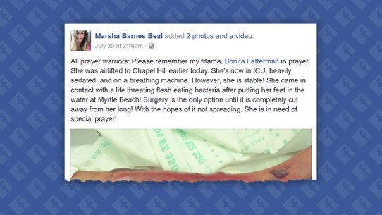 A Viral Facebook Post Claimed That Woman Was Gravely Sickened By Flesh Eating Bacteria In Myrtle Beach
