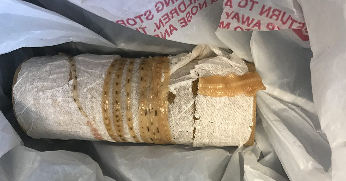 Sushi-loving man pulls 5-foot tapeworm from body, visits ER later