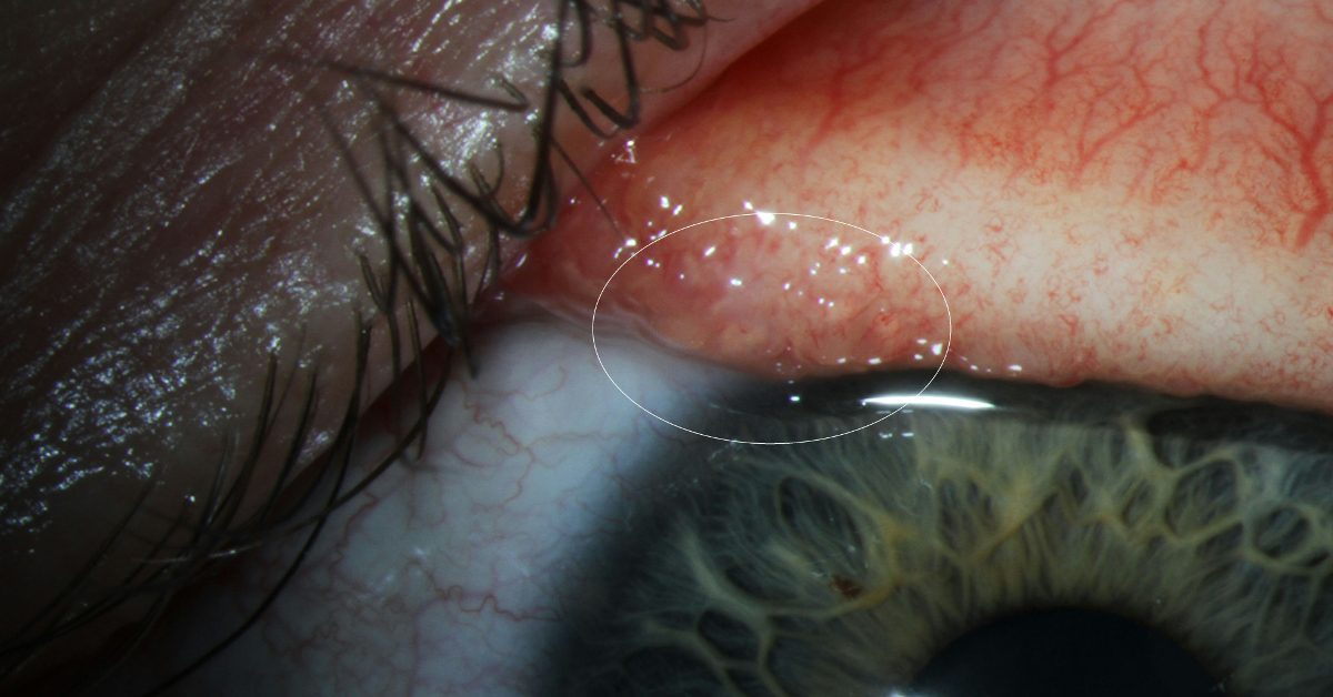 Woman Infected by Parasitic Cattle Eye Worm