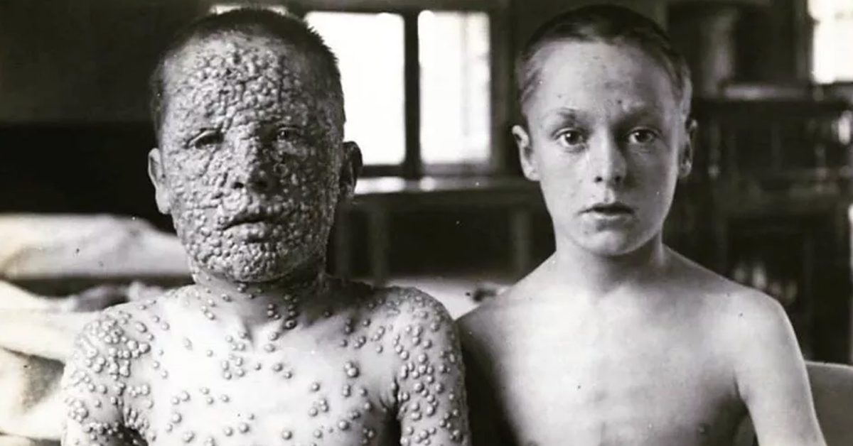 FACT CHECK: Does This Photograph Show Two Boys — One Vaccinated, One Not — Who Were Exposed to Smallpox?